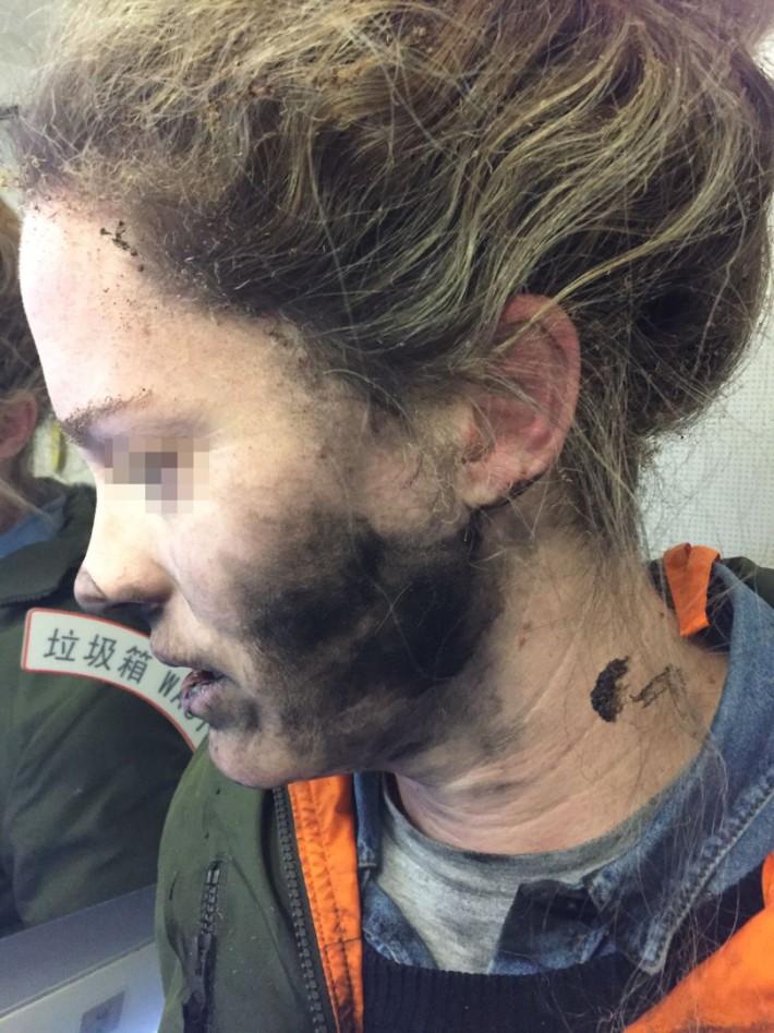 爆炸發生後,女事主的面部和頸項被薰黑。