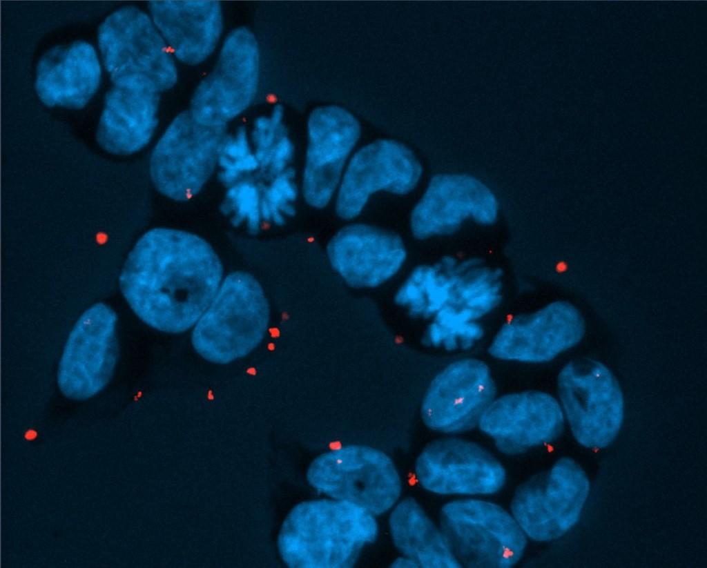 極微細的鑽石粉末有發光的特點,結合特定激素,可幫助醫生判斷癌細胞位置。