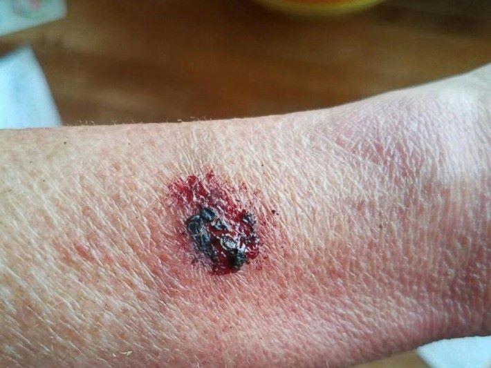 爆炸令傷者手臂造成二級燒傷。