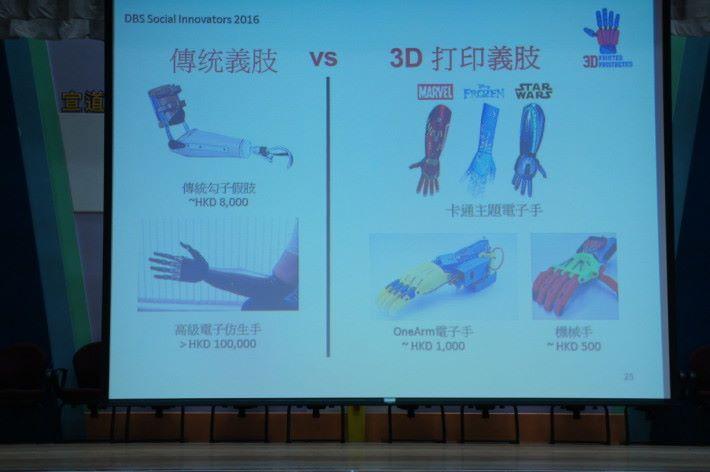 傳統義肢費用高,以立體打印製作有望降低成本。