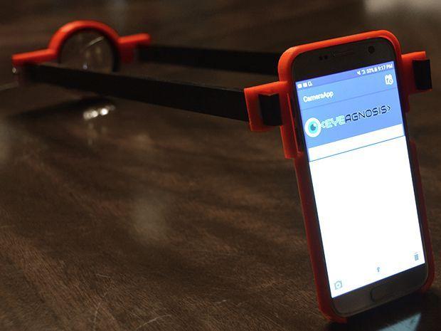App 配合 3D 打印裝置,便可辨識糖尿病視網膜病變。