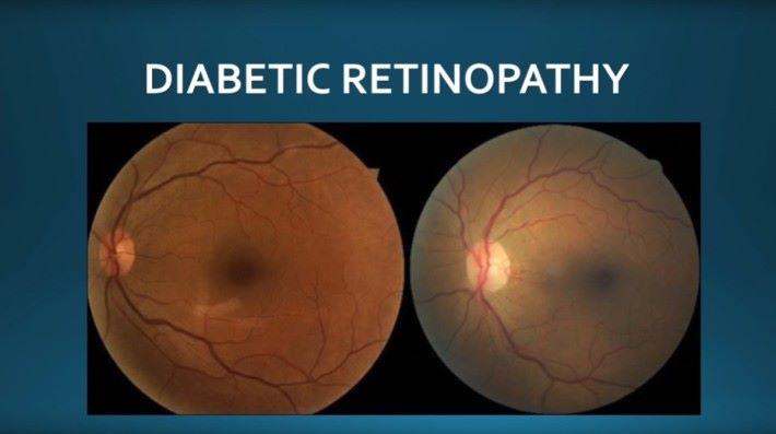 她在分享中指出糖尿病視網膜病變的主要分別。