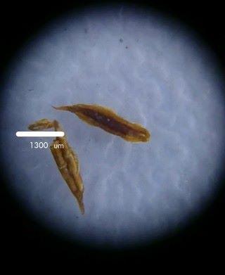 加上尺規後拍攝的顯微鏡相片。