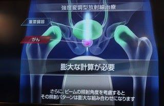 透過 DAU 將傳統需要 20 至 60 分確定放射能量及角度,可大幅縮至幾秒。