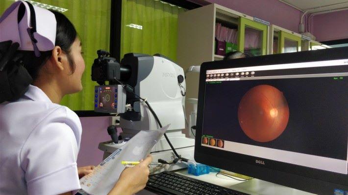Google 提供 AI 模型,協助眼科醫生較少的泰國醫生,及早診斷出糖尿病性視網膜病變。
