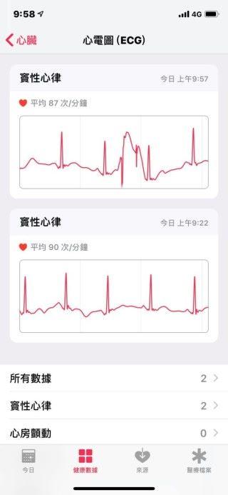 心電圖紀錄會保留在《健康》App 內