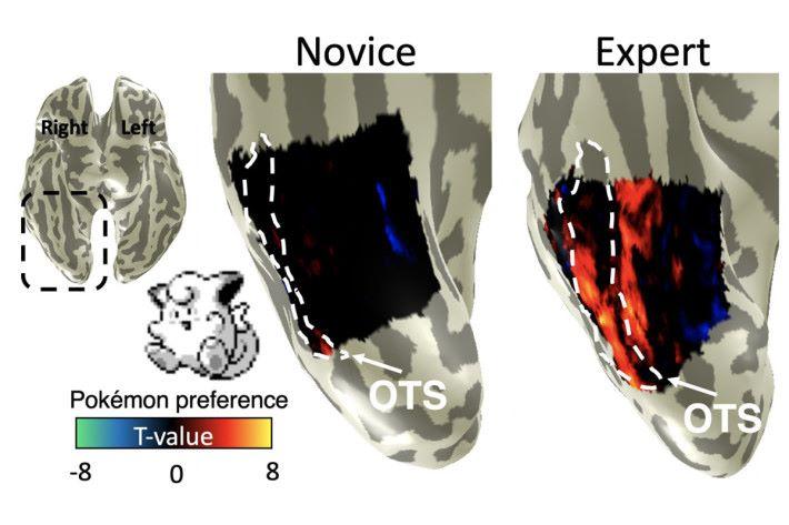 磁力共振掃描顯示,小時候玩 Pokémon 長大的人(右),大腦對小精靈圖像的反應,比沒有玩的人(左)明顯。