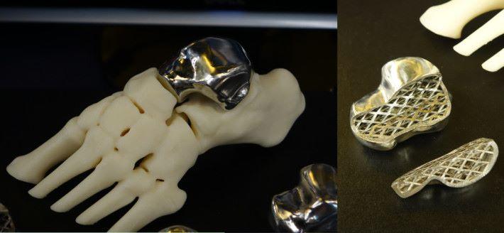 科能三維用 3D 金屬打印為病人重建踝骨。近年進一步改進技術,以網狀骨幹做內部支撐,減輕一半重量。
