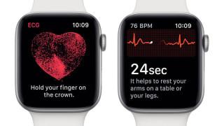 Apple watch 的心率功能挽救過不少生命