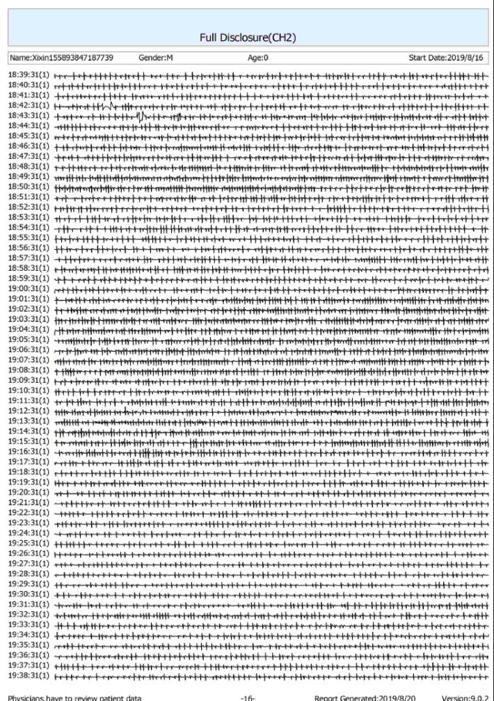 24小時的完整心律變化圖
