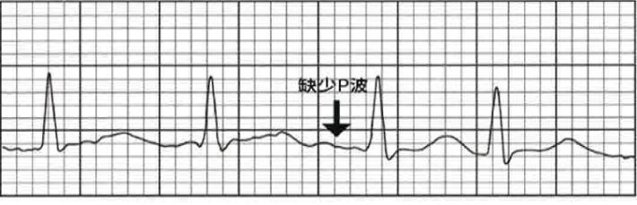 缺少 P 波圖例。代表心房顫動。