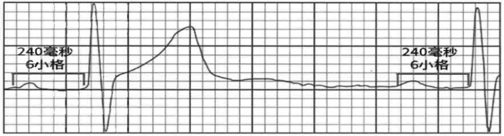 I型房室傳導阻滯 (AVB) 圖例。表現為PR區間延長。