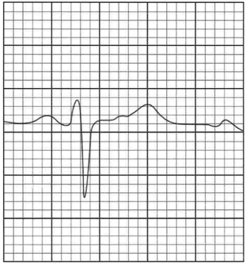 急性心肌梗死 (Acute Myocardial Infarction) 圖例。表現為 QRS 波群過低。
